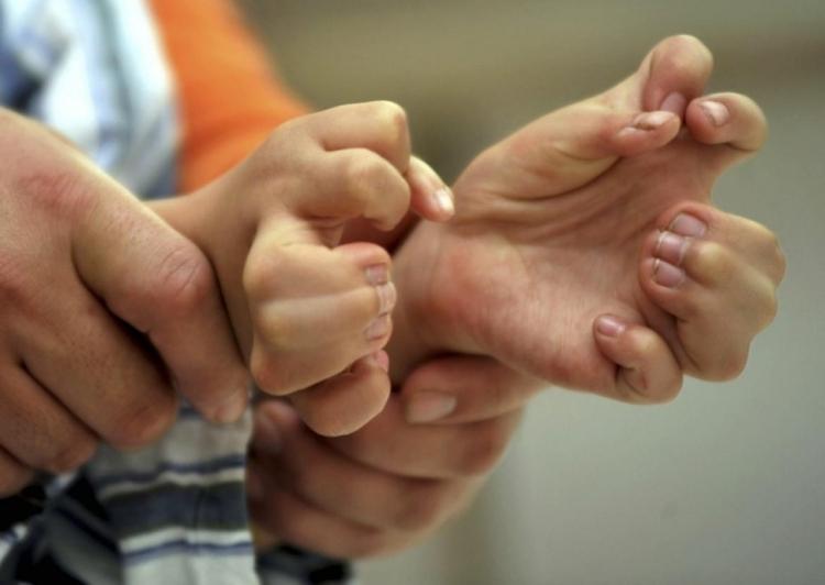 Мутация рук у ребенка