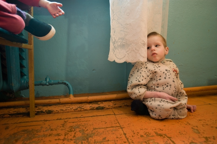 Ребенок, родившийся после аварии на ЧАЭС