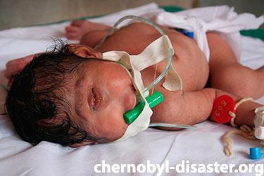 Chernobyl babies