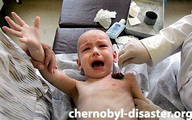 Chernobyl children