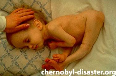 Chernobyl kids