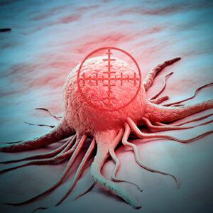 Ionizing radiation cancer